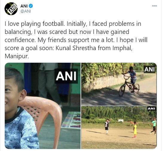 Imphan boy with one leg Kunal