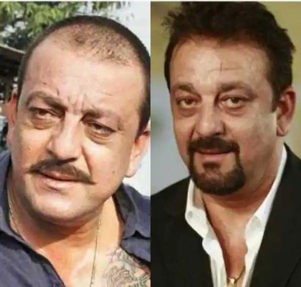 Sanjay Dutt hair loss and transplant