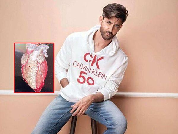Hrithik Roshan Heart Photo: दिल की फोटो शेयर करते हुए इमोशनल हुए ऋतिक रोशन, लिखा- मेरे दिल का शेप