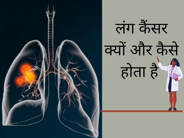 Sanjay Dutt lung cancer stage 3, lung cancer kyu hota hai